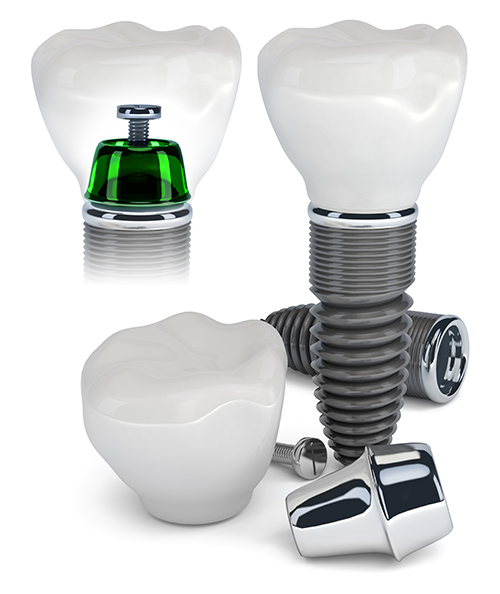 Dental Implants Admiral Heights