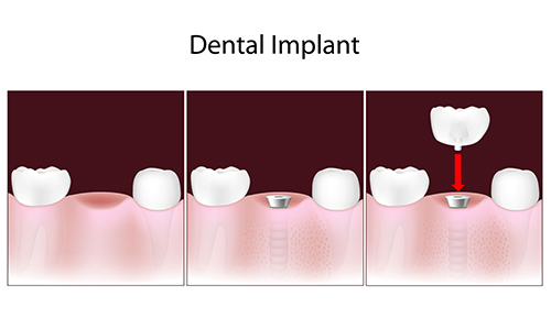Dental Implants in Annapolis
